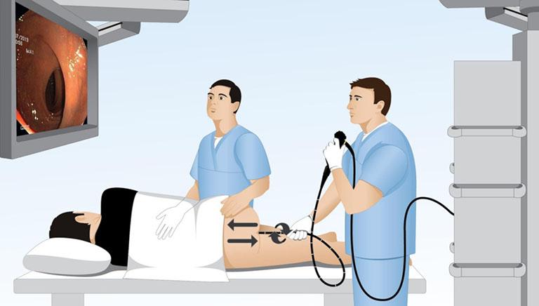 Các phương pháp chẩn đoán bệnh trĩ nội