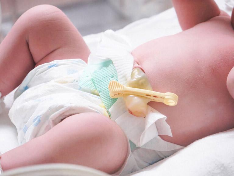 Thời gian rụng rốn của trẻ sơ sinh
