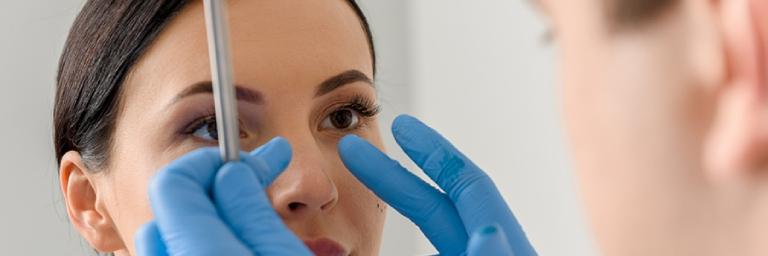 Phẫu thuật chỉnh sửa mũi bị lệch