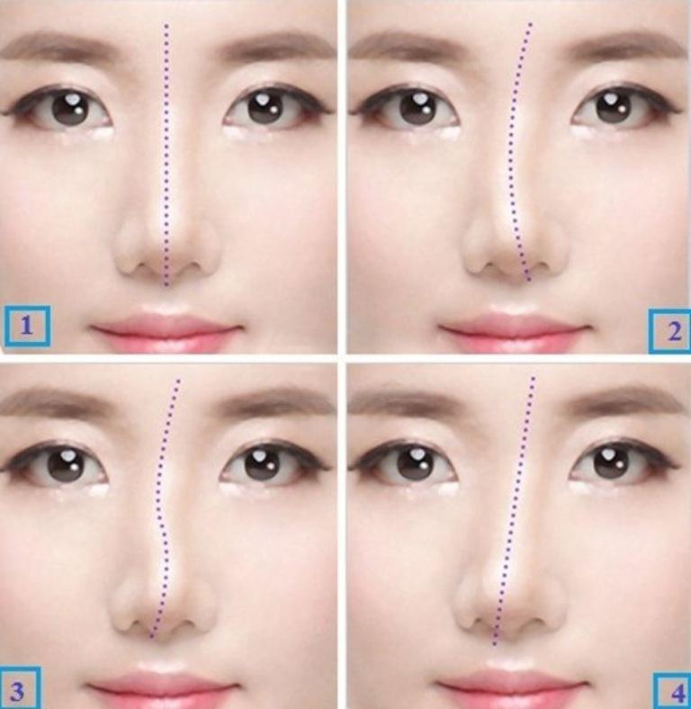Chỉnh sửa mũi bị lệch: Phương pháp và chi phí cần biết