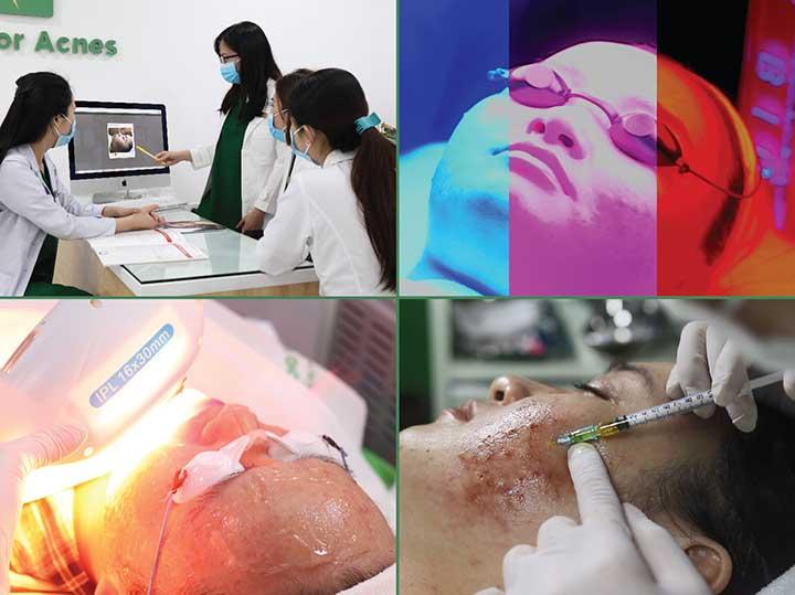 Điều trị mụn tại pk da liễu doctor acnes
