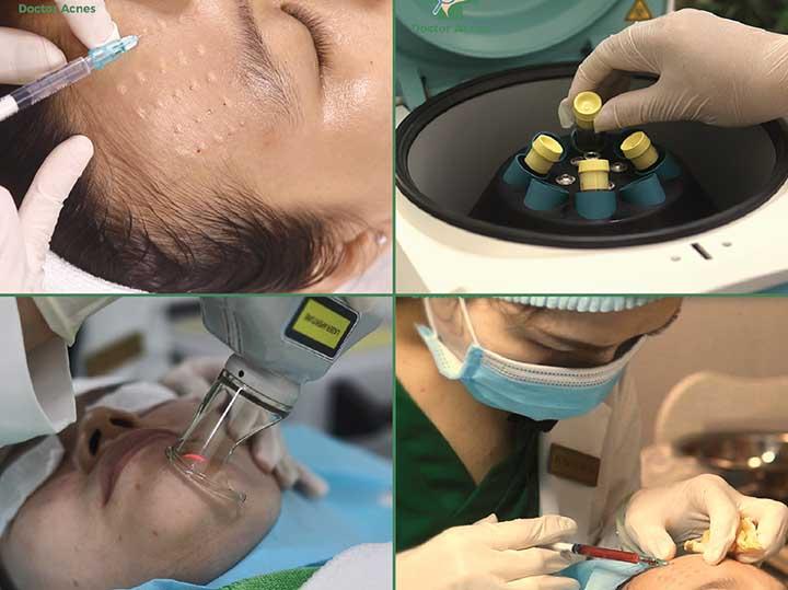 Điều trị sẹo do mụn tại pk doctor acnes