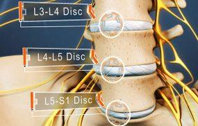 Bệnh gai cột sống L4, L5 là gì?
