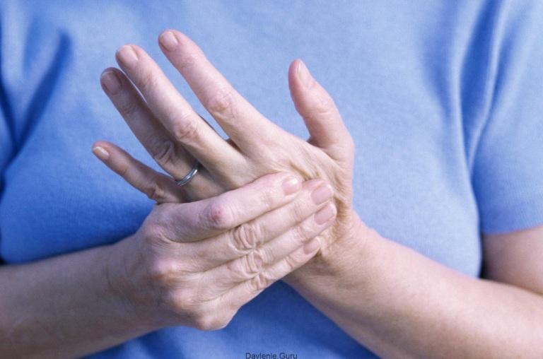 Nguyên nhân gây ra hạt dưới da trong viêm khớp dạng thấp