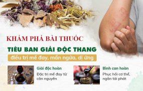 Bài thuốc chữa mề đay của Trung tâm Thuốc dân tộc tiện lợi