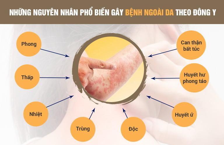 Viêm da cơ địa có thể hình thành và tái phát thường xuyên từ rất nhiều yếu tố từ bên trong
