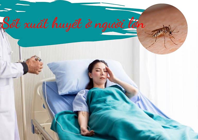 sốt xuất huyết ở người lớn