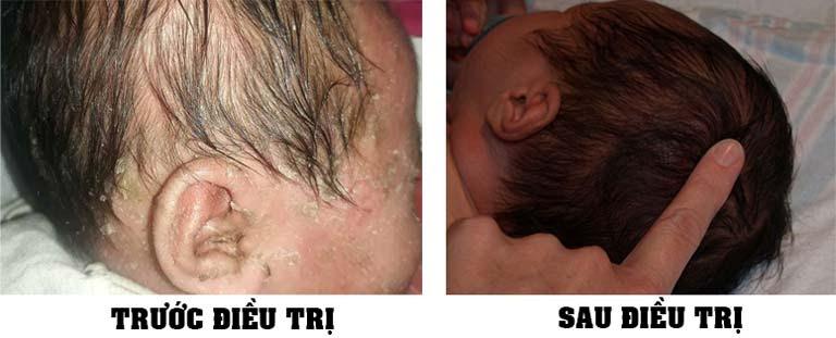 Trước và sau điều trị viêm da dầu ở trẻ em tại Trung tâm Thuốc dân tộc (Ảnh chị Hằng cung cấp )