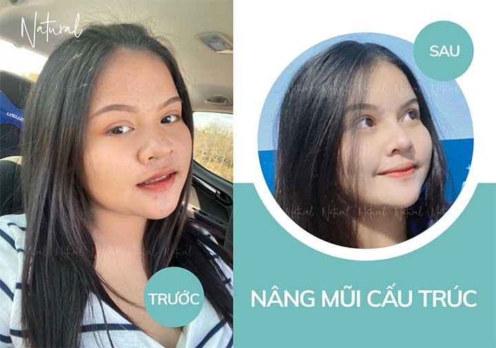 Trước và sau khi thu gọn mũi