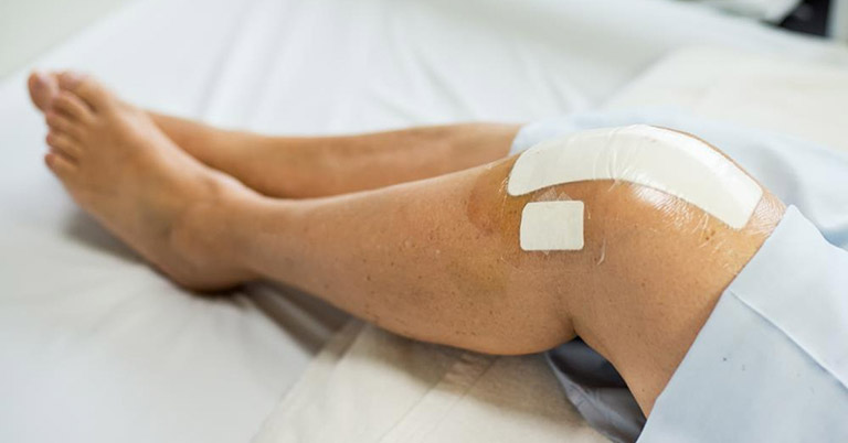 viêm bao hoạt dịch khớp gối