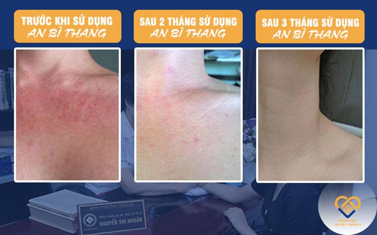 Cải thiện tình trạng da theo từng giai đoạn, tác động rõ rệt