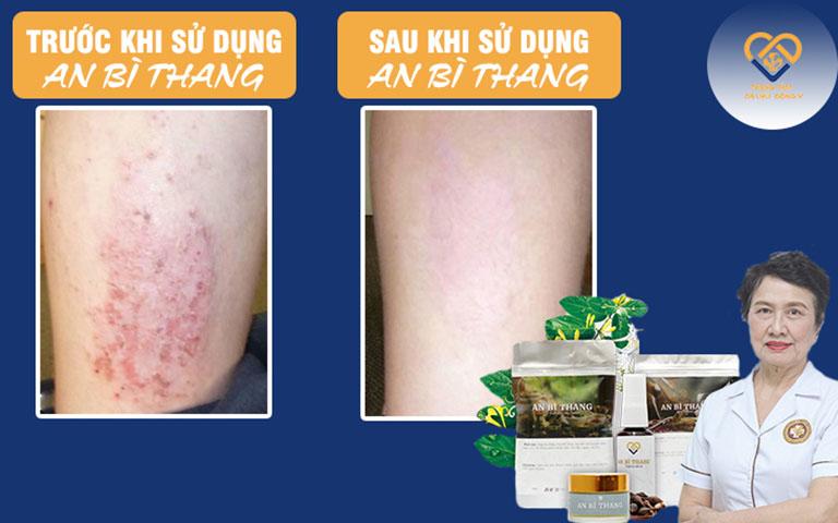 Hiệu quả điều trị viêm da cơ địa của bài thuốc An Bì Thang được khách hàng phản hồi tích cực