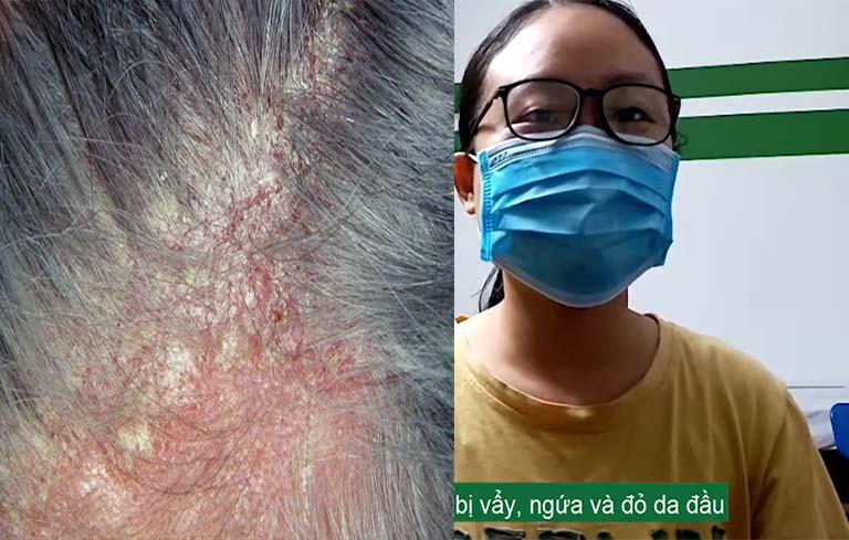 Tình trạng viêm da đầu của bé Trang khi đến với Trung tâm Thuốc dân tộc