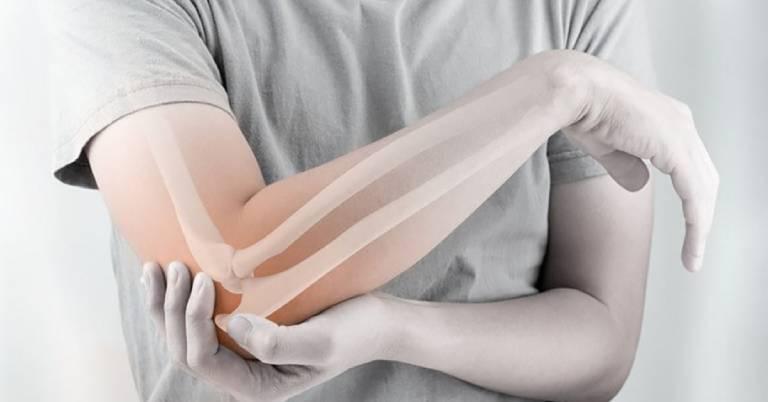 Viêm khớp khuỷu tay: Biểu hiện và biện pháp điều trị