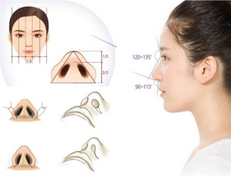 Phẫu thuật cắt cánh mũi