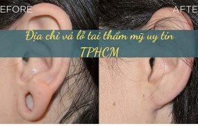 Địa chỉ vá lỗ tai thẩm mỹ tại TPHCM