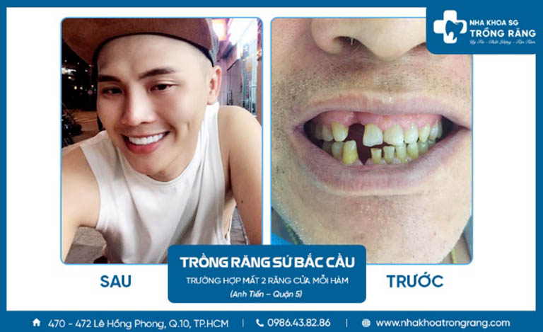 Nha khoa Trồng Răng Sài Gòn