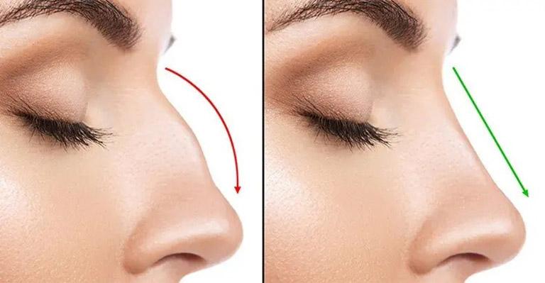 Phẫu thuật cắt cánh mũi có đau không?