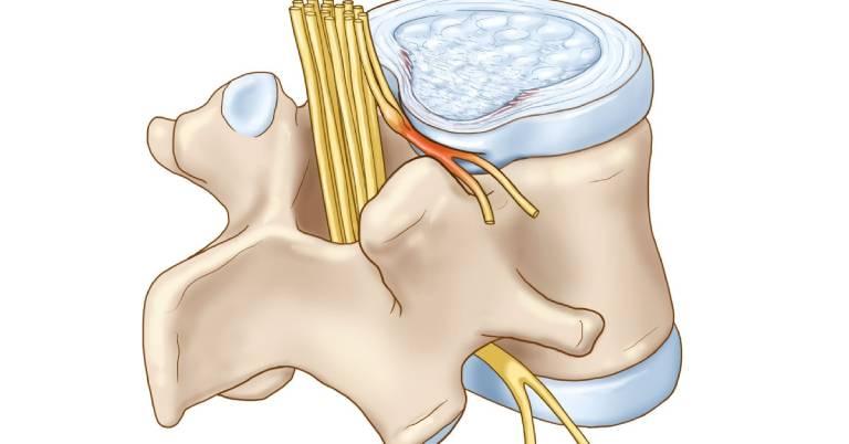 Thoái hóa đốt sống cổ chèn dây thần kinh là tình trạng phần cột sống lệch ra khỏi vị trí ban đầu chèn ép lên dây thần kinh