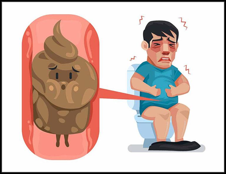 Trĩ ngoại huyết khối