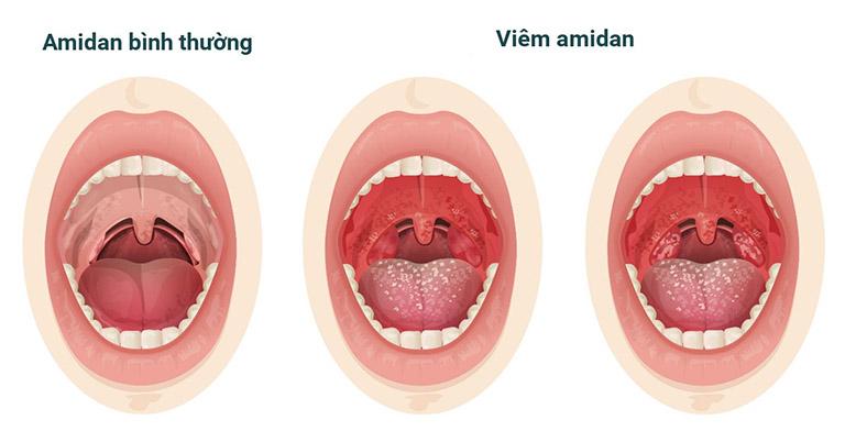 Đau họng nổi hạch dưới hàm