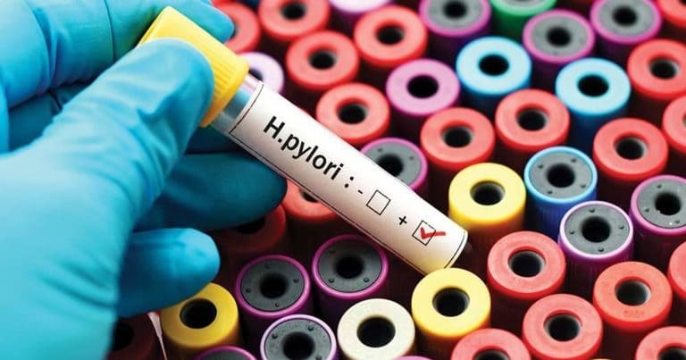Phác đồ điều trị viêm loét dạ dày có vi khuẩn HP