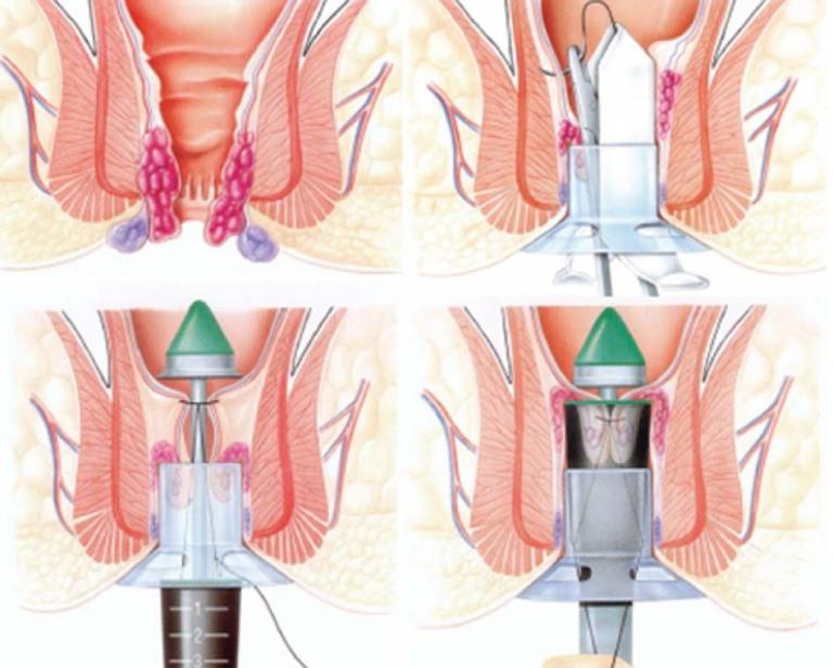 Phẫu thuật cắt búi trĩ bằng phương pháp PPH