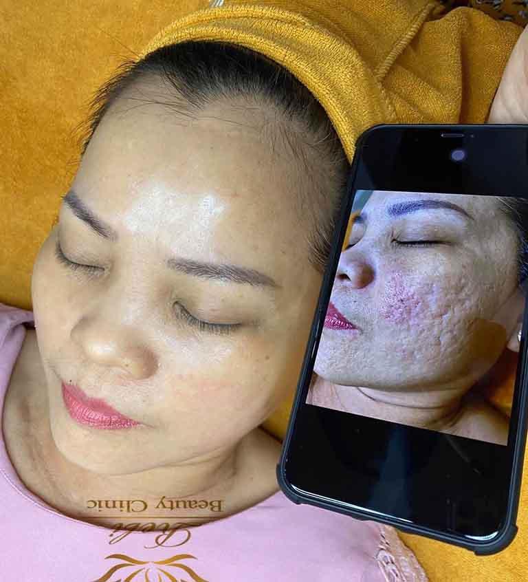 Rebi Beauty Clinic