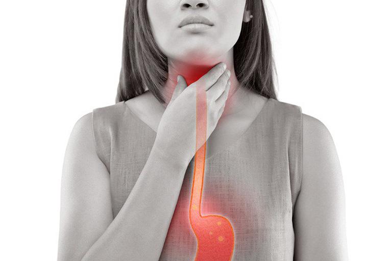 Viêm dạ dày trào ngược dịch mật