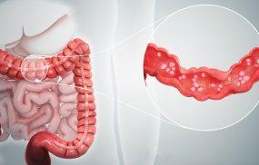Bệnh viêm đại tràng cấp tính là gì?