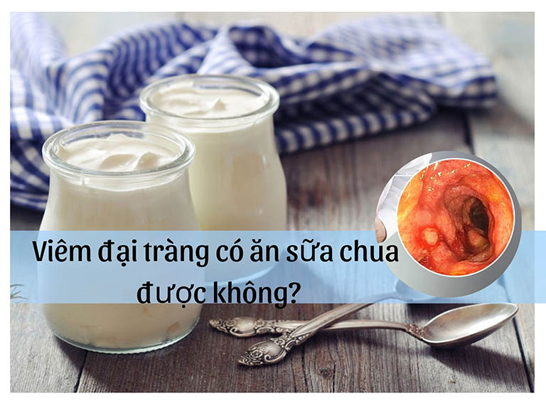 viêm đại tràng có ăn sữa chua được không