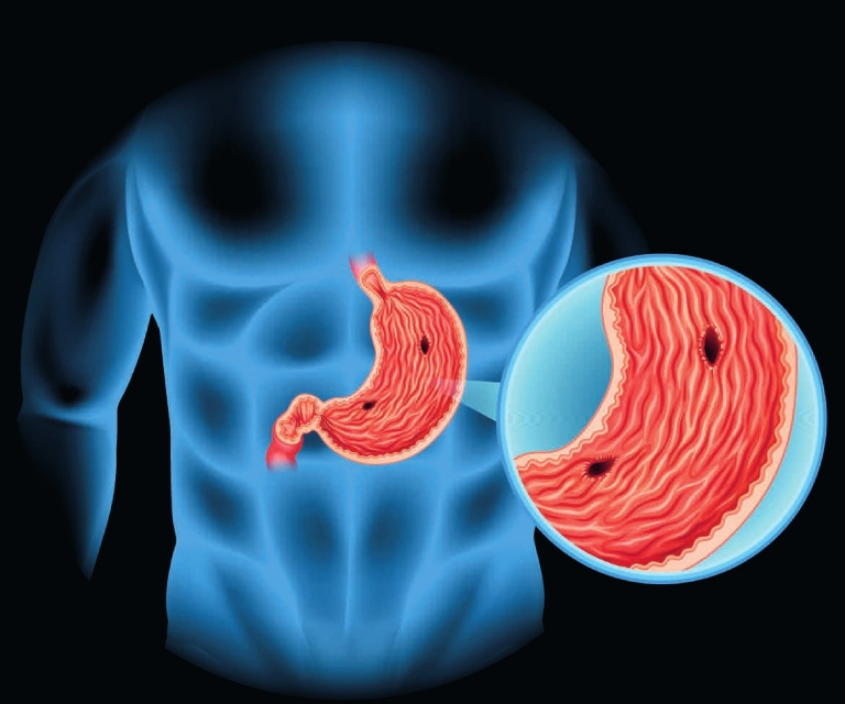 Viêm hang vị dạ dày phù nề xung huyết là bệnh gì?