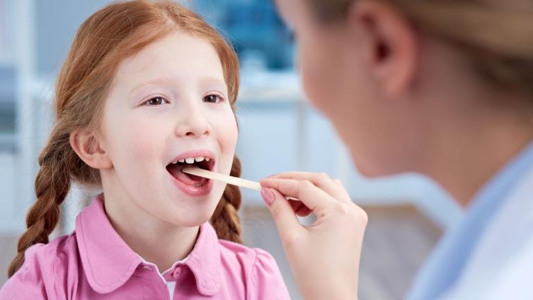 Viêm họng hạt ở trẻ em có lây không? Có chữa khỏi được không?