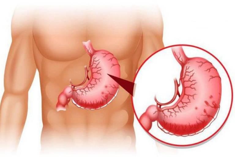 Giãn tĩnh mạch dạ dày gây rách tĩnh mạch khiến dạ dày viêm, chảy máu