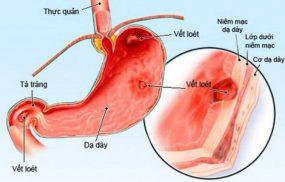 Viêm xuất huyết niêm mạc dạ dày là tình trạng tổn thương lớp màng niêm mạc gây hiện tượng viêm và xuất huyết