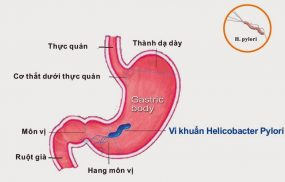 Viêm xung huyết hang vị có vi khuẩn hp
