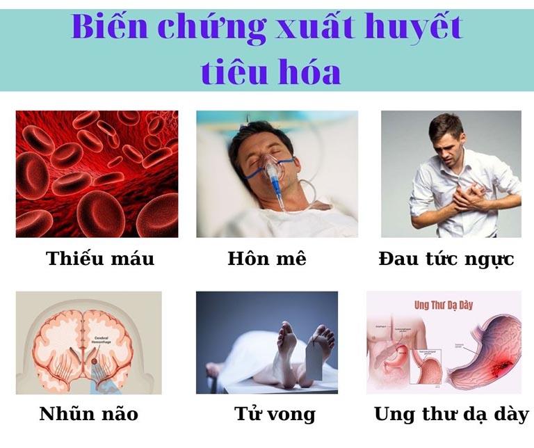 Xuất huyết dạ dày có nguy hiểm không