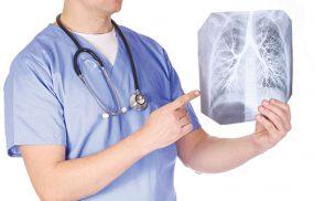 chữa viêm phế quản không dùng kháng sinh