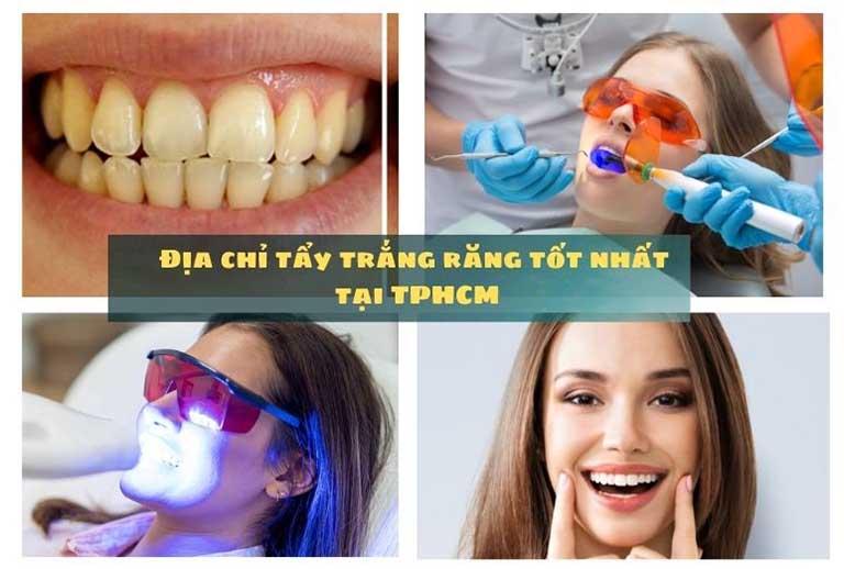 địa chỉ tẩy trắng răng tốt nhất tại TPHCM