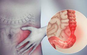 Viêm đại tràng co thắt là tình trạng rối loạn chức năng ruột nhưng không tìm thấy tổn thương thực thể ở ruột