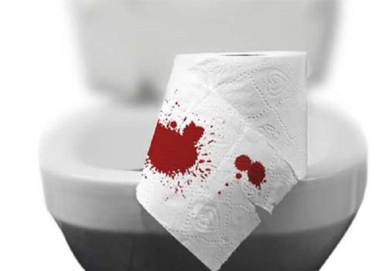 Viêm đại tràng đi ngoài ra máu và cách xử lý