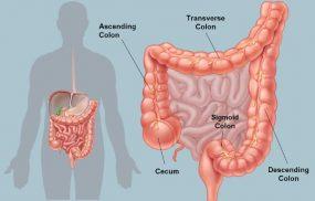 Bệnh viêm đại tràng Sigma là gì?