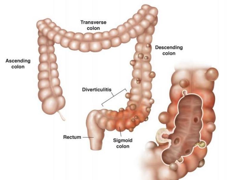 Bệnh viêm túi thừa đại tràng là gì?