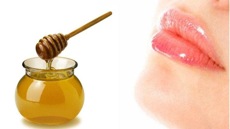 Bệnh chàm môi