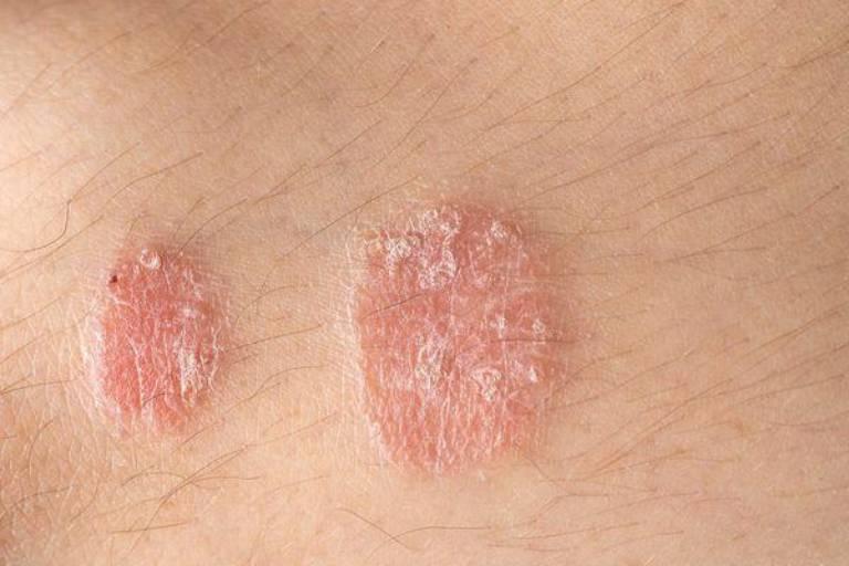 Vảy phấn hồng hay bệnh vảy nến hồng là bệnh thường gặp ở người trong độ tuổi từ 10 - 35