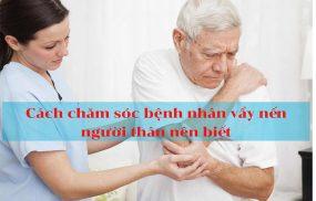 Cách chăm sóc bệnh nhân vẩy nến