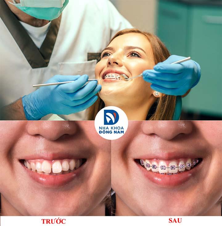 Chỉnh nha riềng răng tại TPHCM