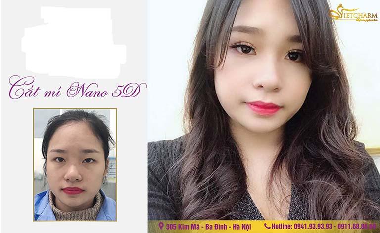 địa chỉ cắt nhấn mí mắt đẹp ở Hà Nội
