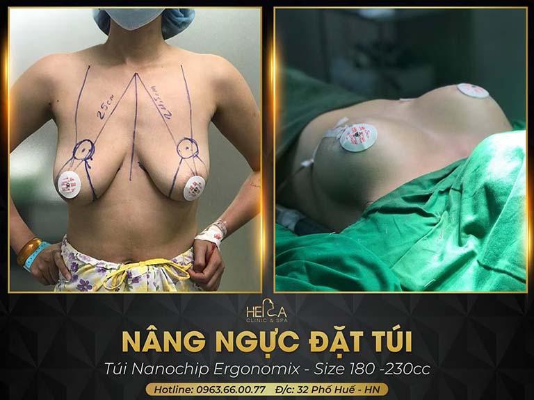 địa chỉ phẫu thuật treo ngực sa trễ tại Hà Nội