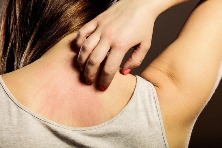 Bệnh lang ben đỏ có nguy hiểm không?